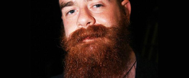 Barba rossa e capelli di colore diverso, a cosa è dovuto ?