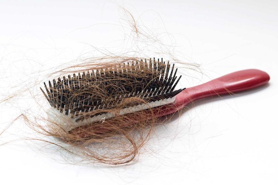 perchè i capelli cadono