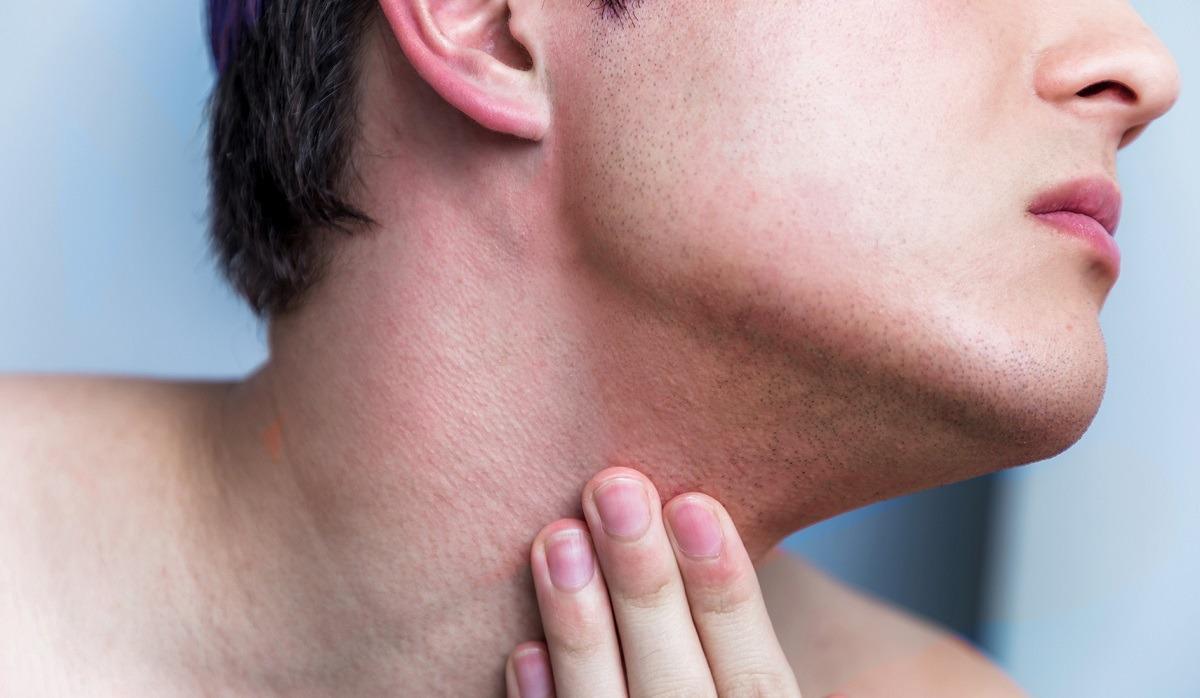 irritazione della barba