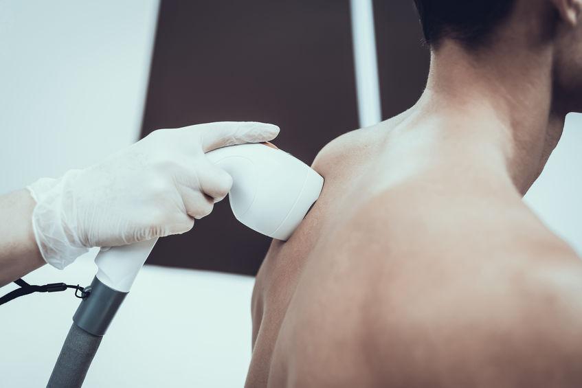 laser per depilazione maschile