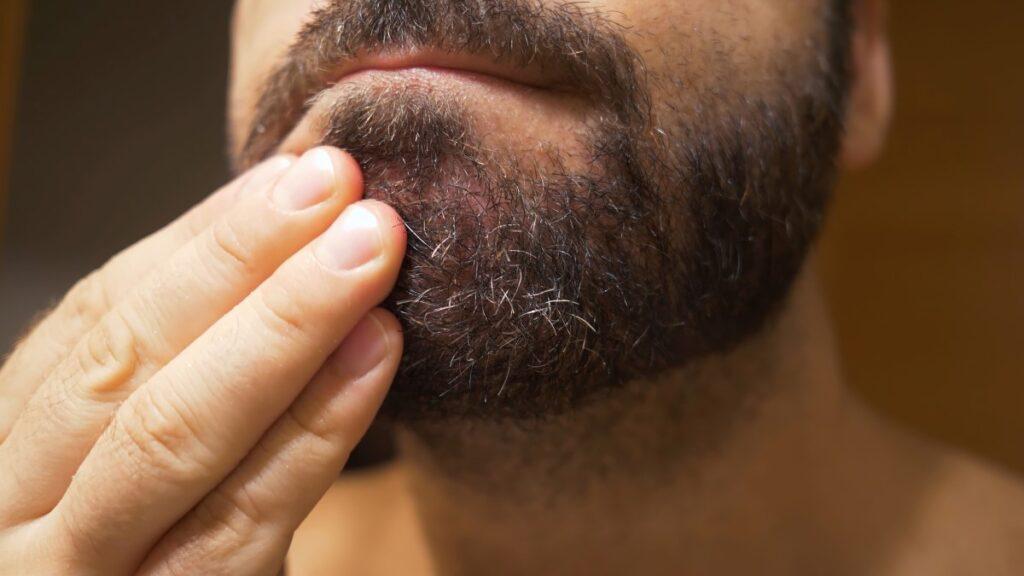 scaglie di forfora nella barba